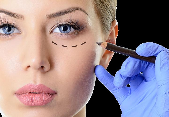 Blefaroplastia, la cirugía de los párpados a la que recurren tanto hombres como mujeres