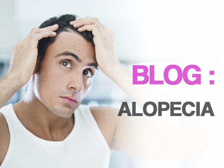 Alopecias; Tipos y tratamientos