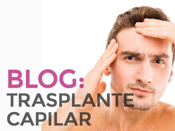 ¿Se puede caer el pelo después de un trasplante capilar?